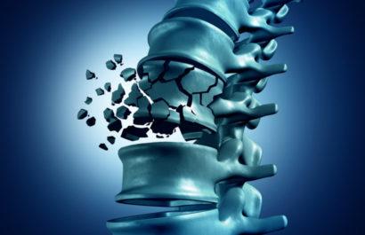 Gesetzliche Unfallversicherung - Verletztenrente - unfallbedingter Wirbelkörperbruch