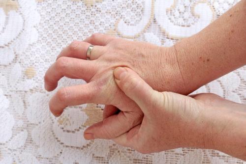 Gesetzliche Unfallversicherung – Berufskrankheit - Rhizarthrose