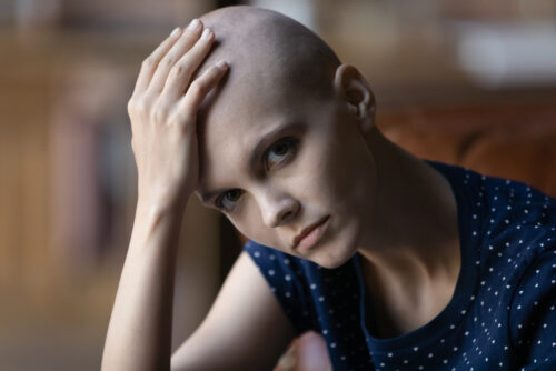 Leistungspflicht der Krankenkasse bei totalem Haarverlust einer weiblichen Versicherten