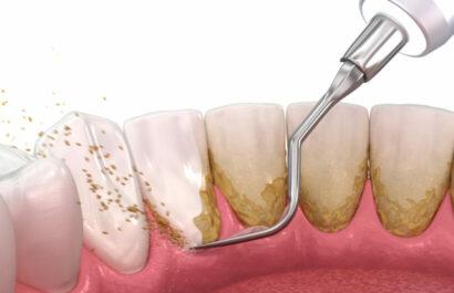 Parodontitis - Durchführung professionelle Zahnreinigung