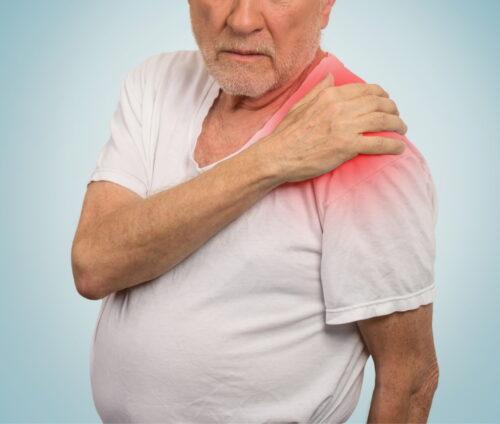 Rotatorenmanschettenruptur als Folge Arbeitsunfall